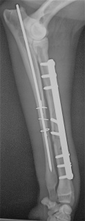Μετεγχειρητική πλάγια ακτινογραφία: Οστεοσύνθεση κερκίδας με πλάκα και βίδες και ωλένης με ήλο και σύρμα